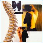 Toronto Chiropractors