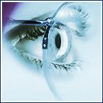 Toronto Opticians